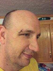 Basketball Injury - 7 stitches