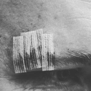 Basketball Injury - taped gash